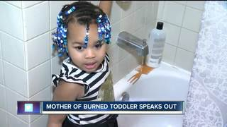 Mother of burned toddler speaks out