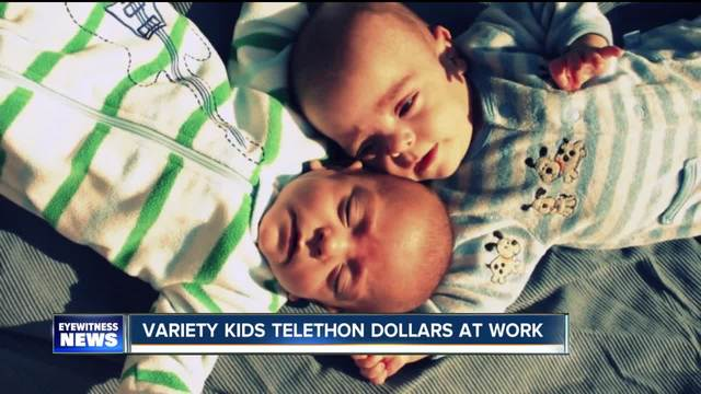 Premature twins- Variety Kids Telethon dollars at work