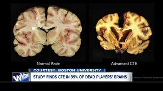 Football leagues continue concussion safety