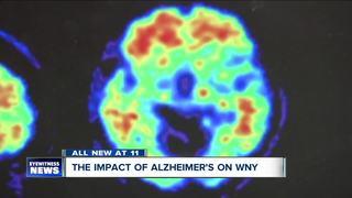 Nearly 55,000 WNY battling dementia