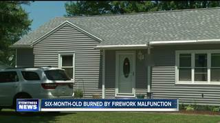 Six-month-old burned by fireworks at home