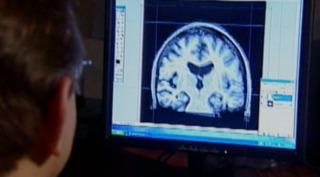 Getting closer to an Alzheimer's cure